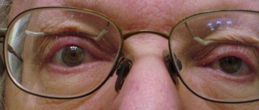 Göz Kapağı Düşüklüğü (Pitozis) İçin Gözlük Var Mıdır?